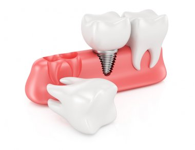 Dental implantation concept