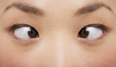 Cross-eyed woman