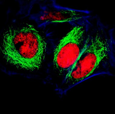 Epithelial tumor cells labeled with fluorescent molecules