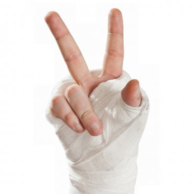 Broken arm in a cast. Fingers show character hippies - peace