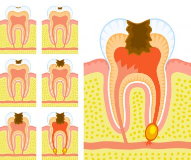Internal structure of tooth (decay and caries)