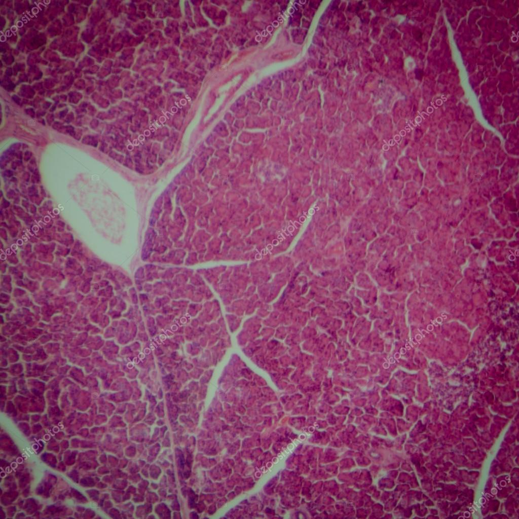 sección microscópica del páncreas humano — Foto de stock © panxunbin ...