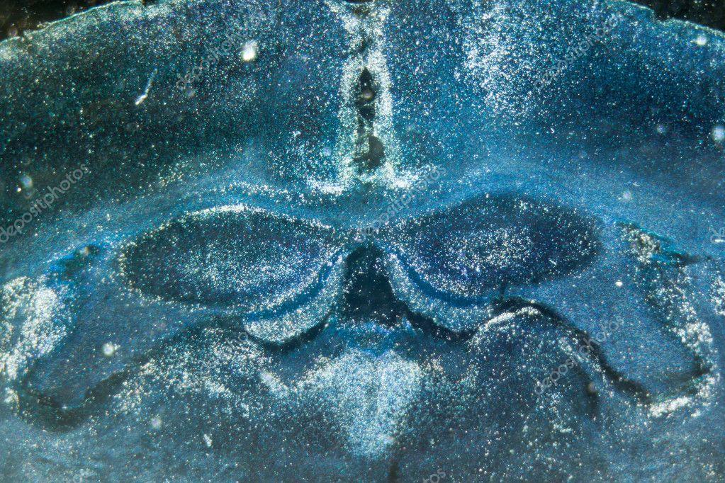 neuronas del hipocampo del cerebro de rata microscopia — Foto de ...