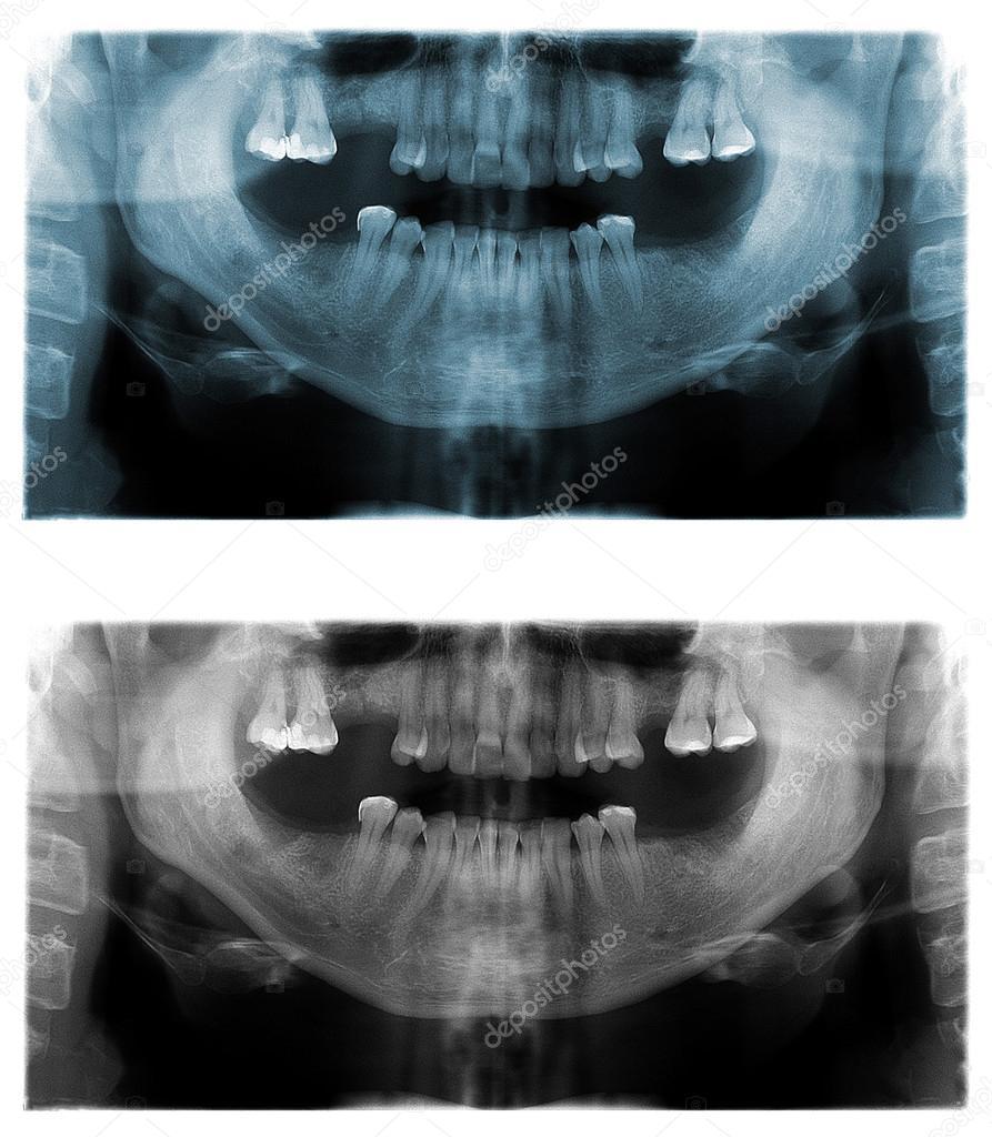 imágenes de radiografía panorámica dental — Foto de stock ...