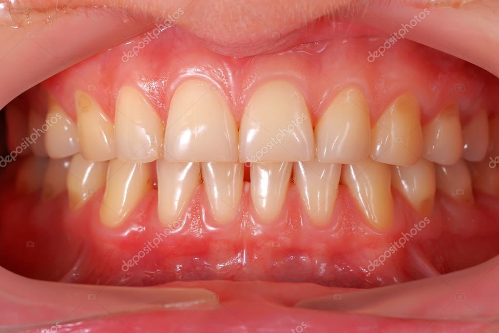 dientes humanos — Foto de stock © vetkit #13664105