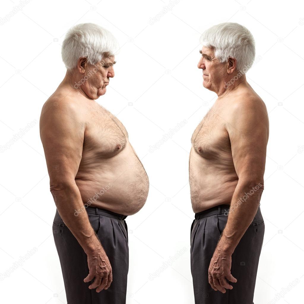 När är man överviktig