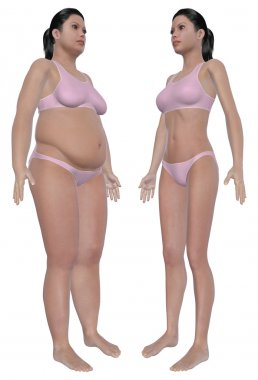 Weight Loss Before And After Angled Front View