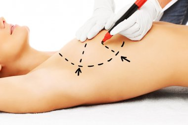 Doctor marking breast for surgery