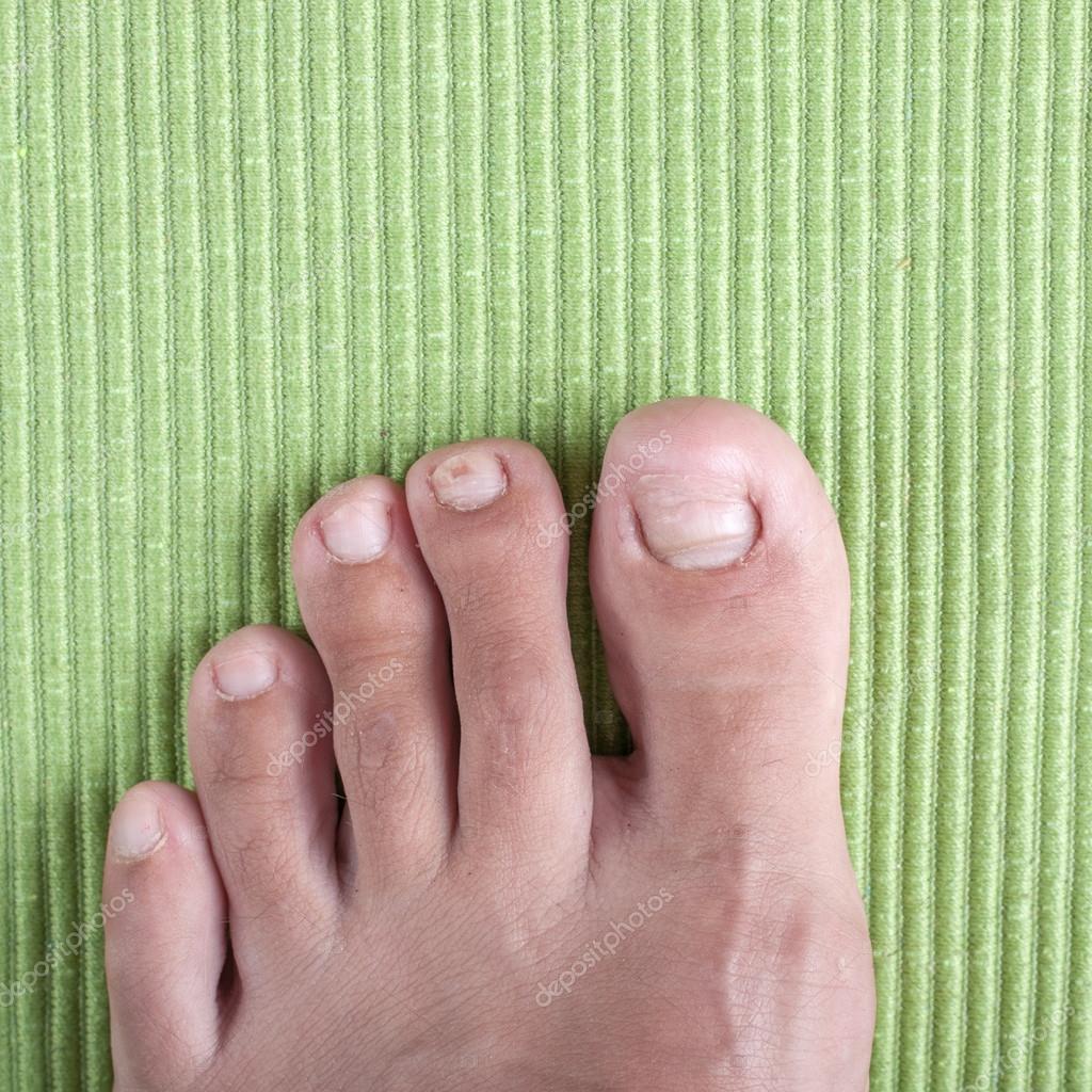 Ingrown toe nail — Stock Photo © librakv #29280175
