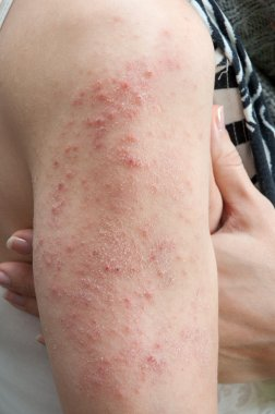 allergic rash dermatitis