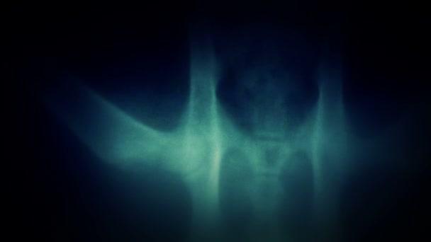 x-ray. lidský x-ray skenování