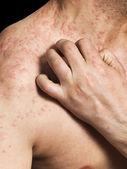Mann, die kratzen allergische Haut