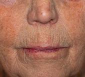 Nahaufnahme eines alten Womans-Mundes