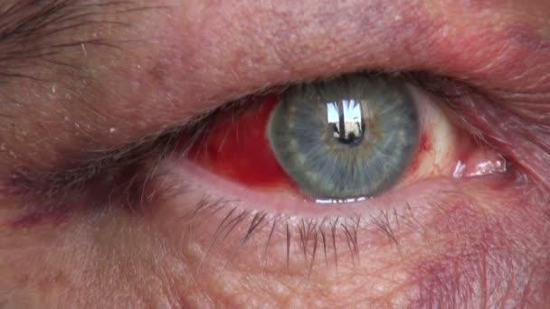 červené oči