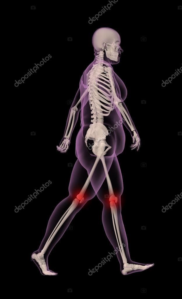 sobrepeso caminando esqueleto femenino — Foto de stock © kjpargeter ...