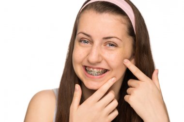 Girl with braces squeezing pimple
