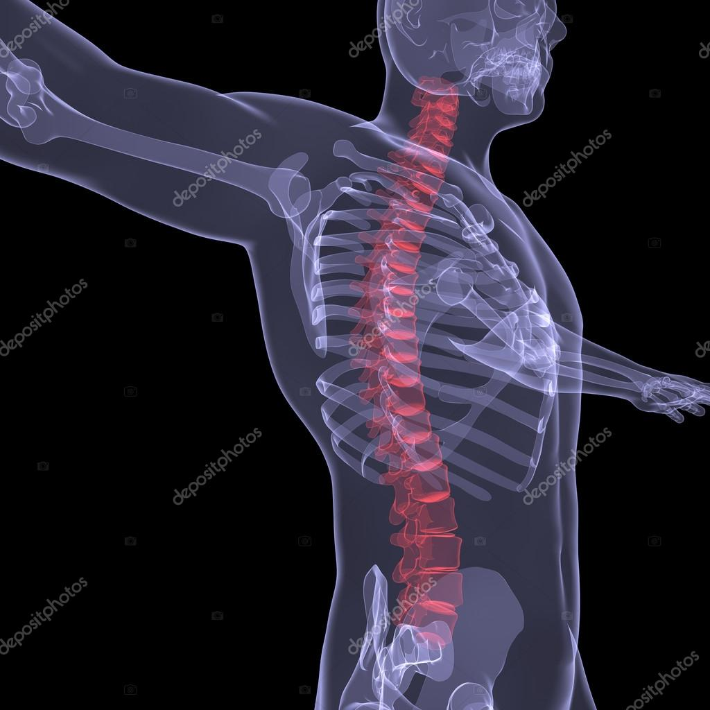Omurganın röntgeni nedir