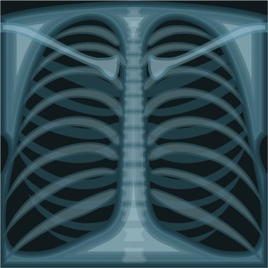 Lungs X ray