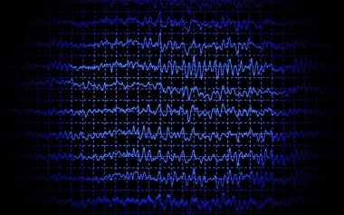 Brain wave eeg isolated on black background stock vector