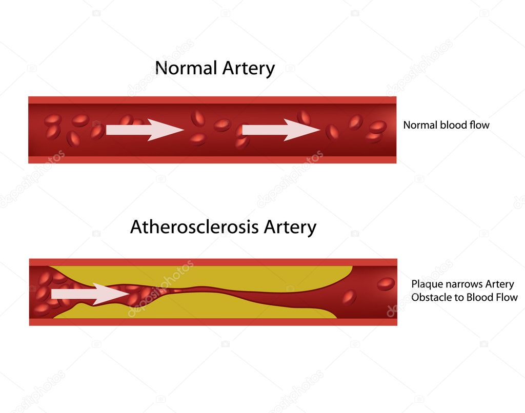 Atherosclerosis illustration.