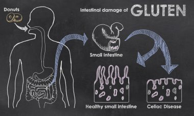Intestinal Damage of Gluten