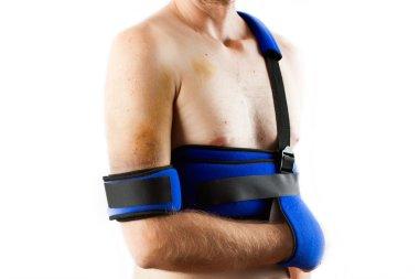 Patient wearing brace