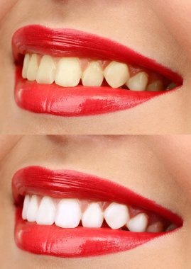 Women smile with teeth: whitening - bleaching treatment , before and after