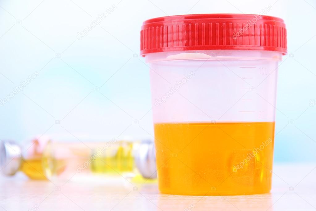Weiße fasern im urin
