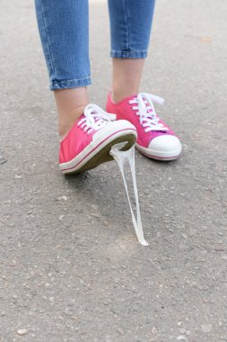 Foot stuck into chewing gum