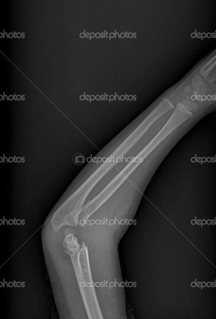 radiografía del brazo roto — Foto de stock © scrisman #39047875