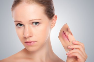 Concept skincare . Skin of beauty young woman with herpes on lip