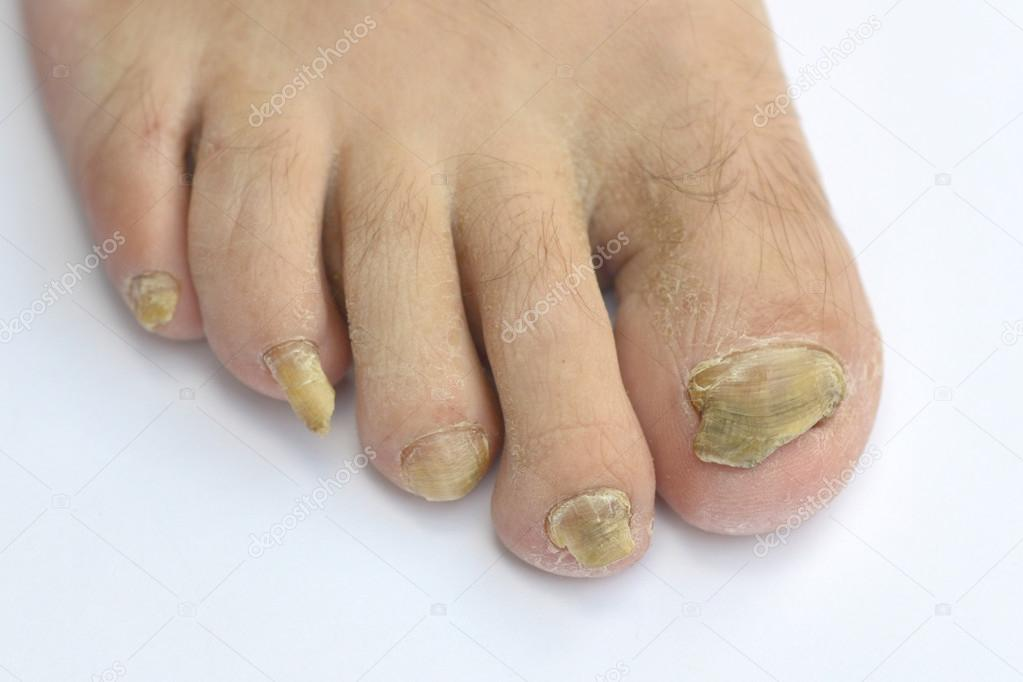 Fungus Infection on Nails — Stock Photo © muro #44098655