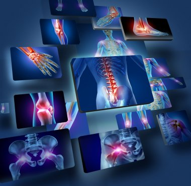 Human joints concept with the skeleton anatomy of the body with a group of panels of sore joints glowing as a pain and injury or arthritis illness symbol for health care and medical symptoms. stock vector