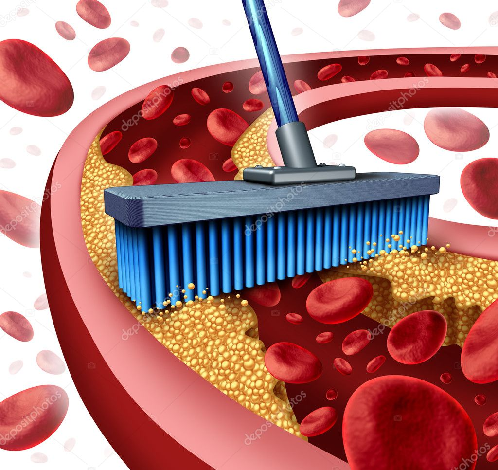 Cleaning Arteries