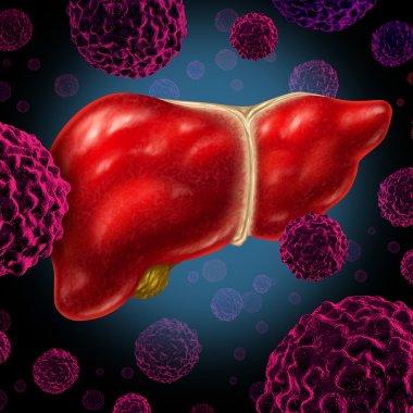 Human Liver Cancer