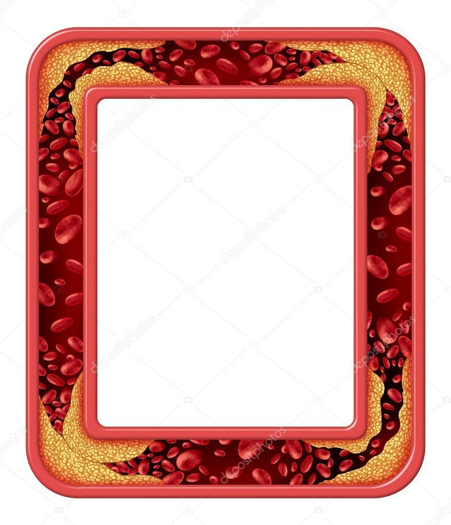 Arterie Krankheit frame — Stockfoto © lightsource #49226441