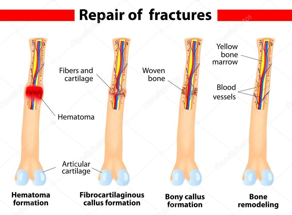 Bone fracture healing process — Stock Vector © edesignua #14316631