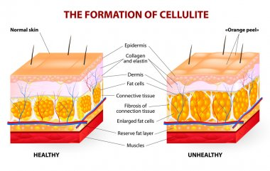 The formation of cellulite. Vector diagram