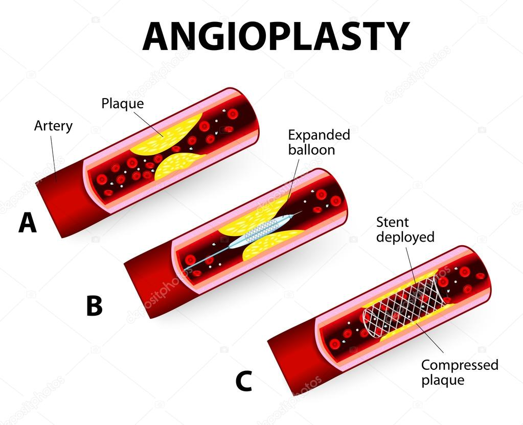 Coronary Balloon Angioplasty. Vector diagram