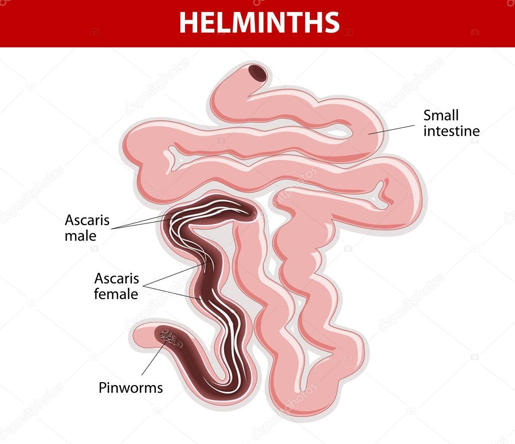 ascaris helminthiasis)