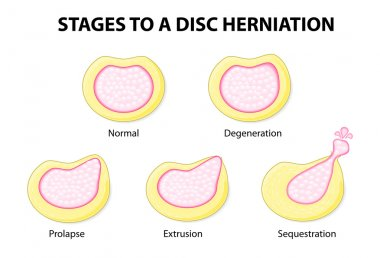 Stages to a disc herniation