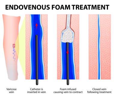 Foam Sclerotherapy. Sclerofoam