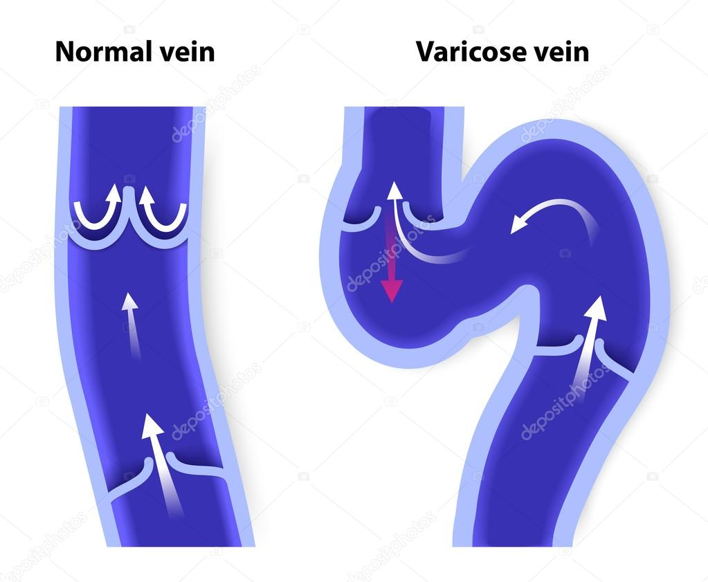 vena normal y venas varicosas — Vector de stock © edesignua #50761609