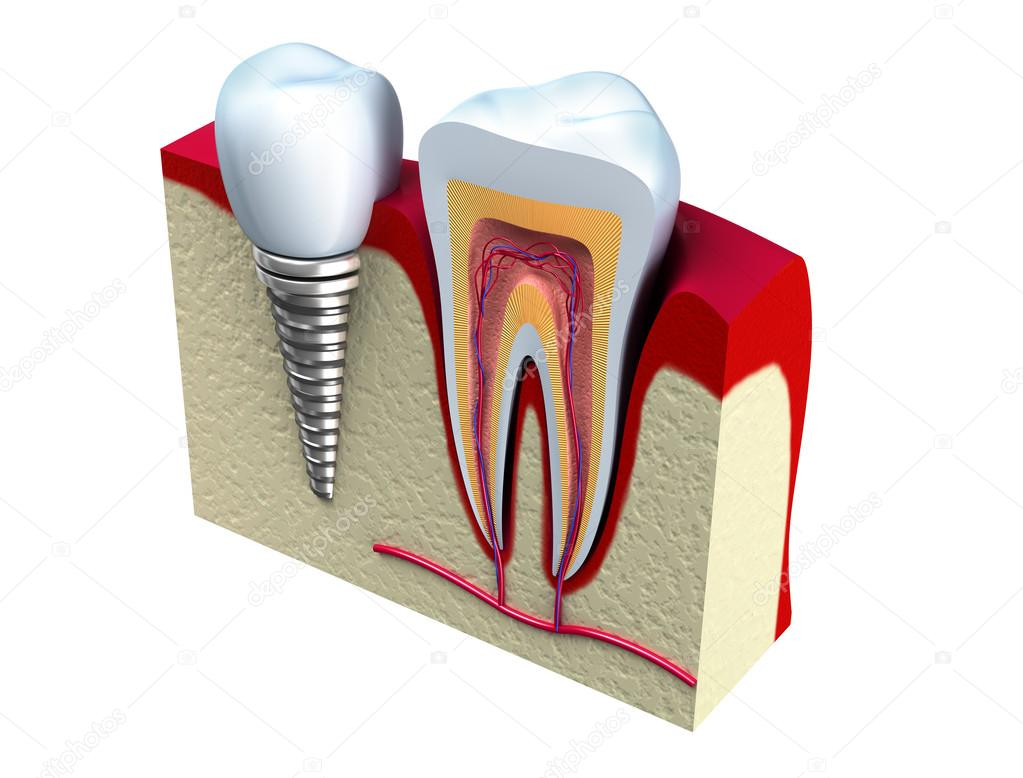 Anatomy of healthy teeth and dental implant in jaw bone. — Stock ...