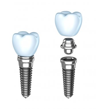 Tooth implant. Аssembled and disassembled. Isolated on white.