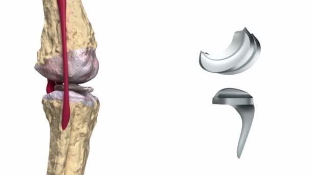 Knie und Titan-Scharnier-Gelenk-Prozess