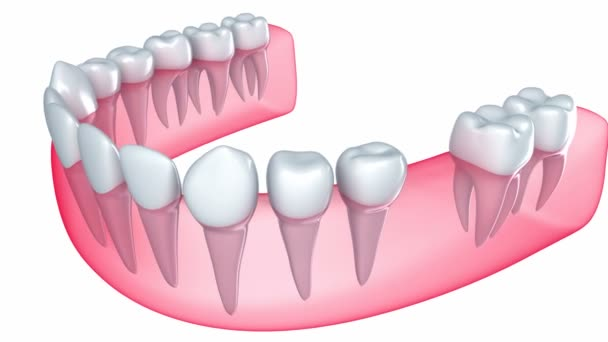 Implant is embedded in the gum