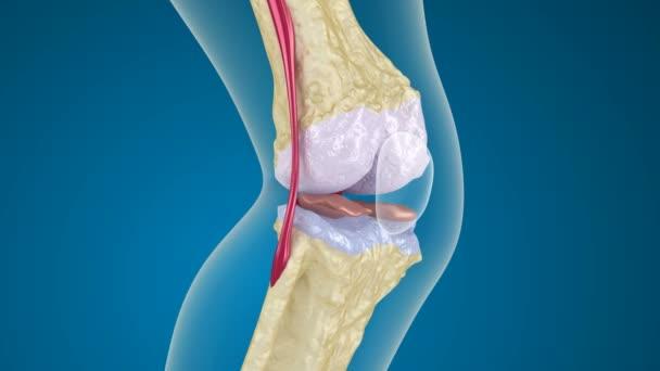 Osteoporóza kolenního kloubu
