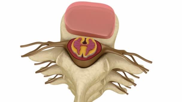 prolasso del disco intervertebrale