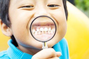 Healthy teeth of child